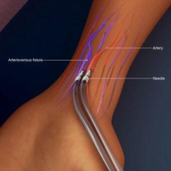 Dialysis Access Surgery