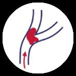 Stroke Mini Stroke Transient Ischaemic Attack