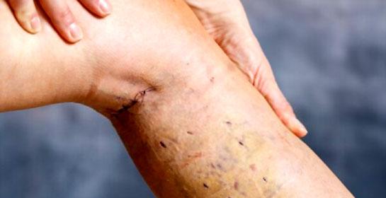 varicose vein surgery