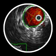 complex venous surgery